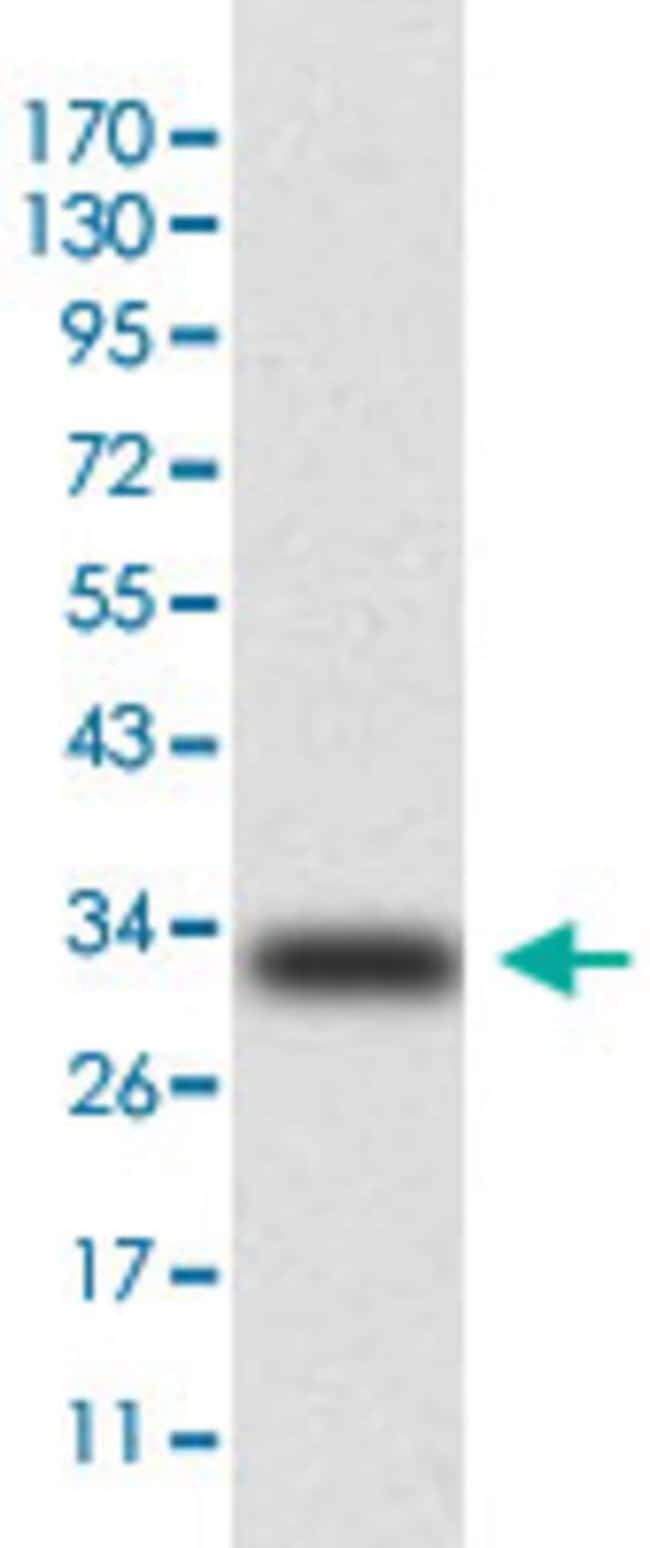 KRT5 Mouse anti-Human, Monkey, Mouse, Clone: 2C2, Abnova 50μg; Unlabeled:Antibodies