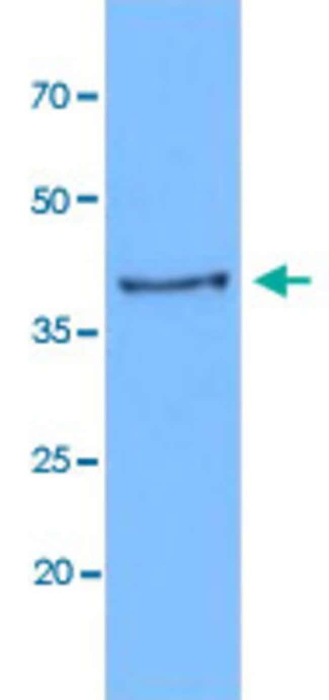 KRT19 Mouse anti-Human, Clone: AT13D10, Abnova 50μL; Unlabeled:Antibodies