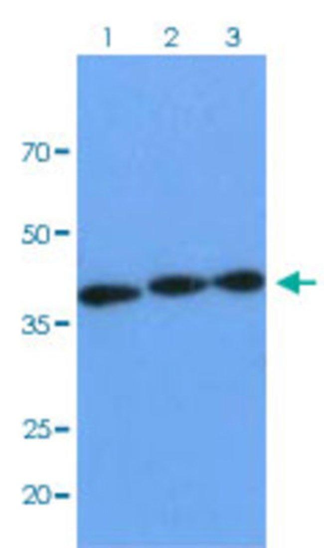 XPA Mouse anti-Human, Clone: AT37C5, Abnova 50μL; Unlabeled:Antibodies