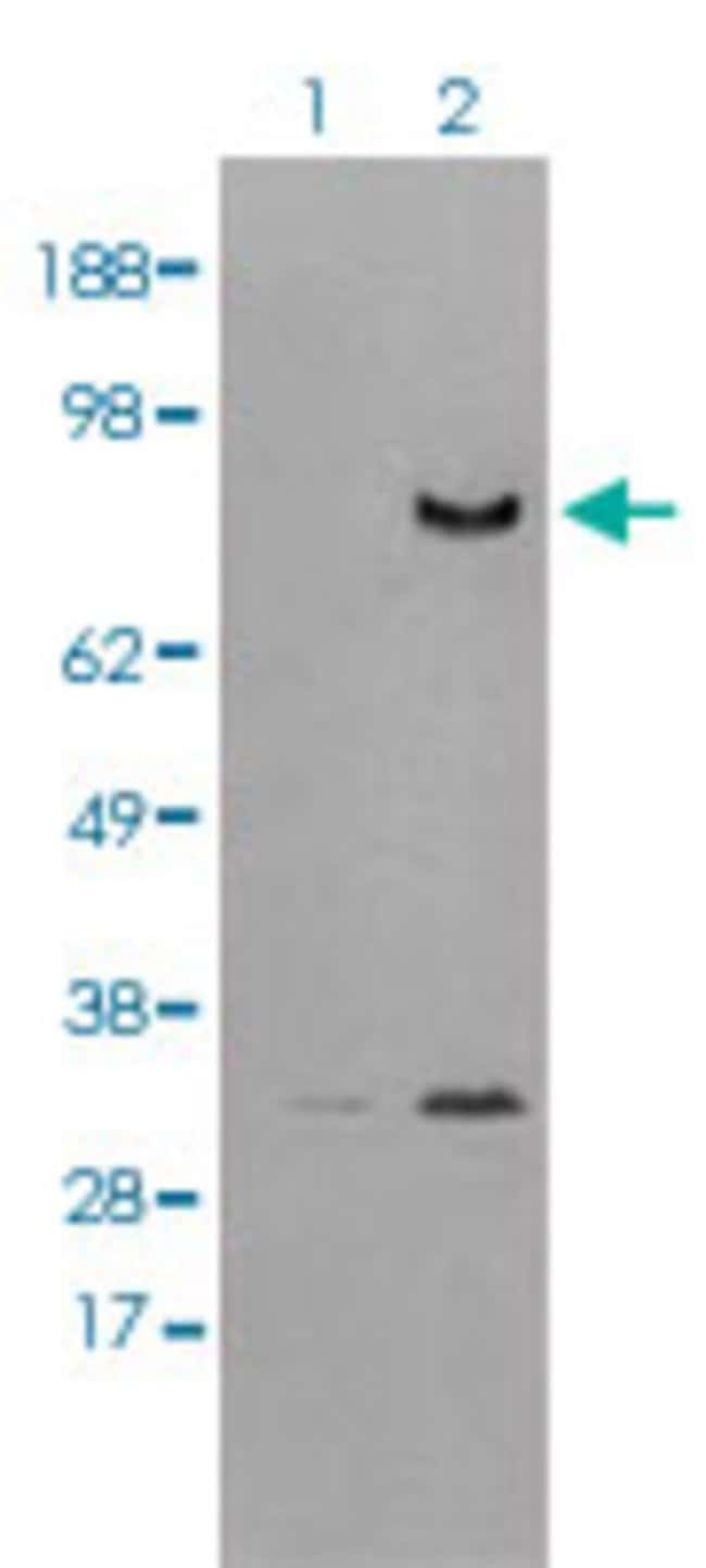 DPP4 Mouse anti-Human, Clone: 11D7, Abnova 50μL; Unlabeled:Antibodies