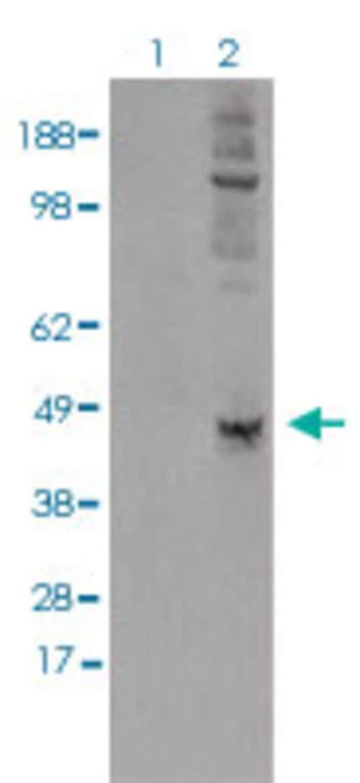 LOX Mouse anti-Human, Clone: 9A11, Abnova 50μL; Unlabeled:Antibodies