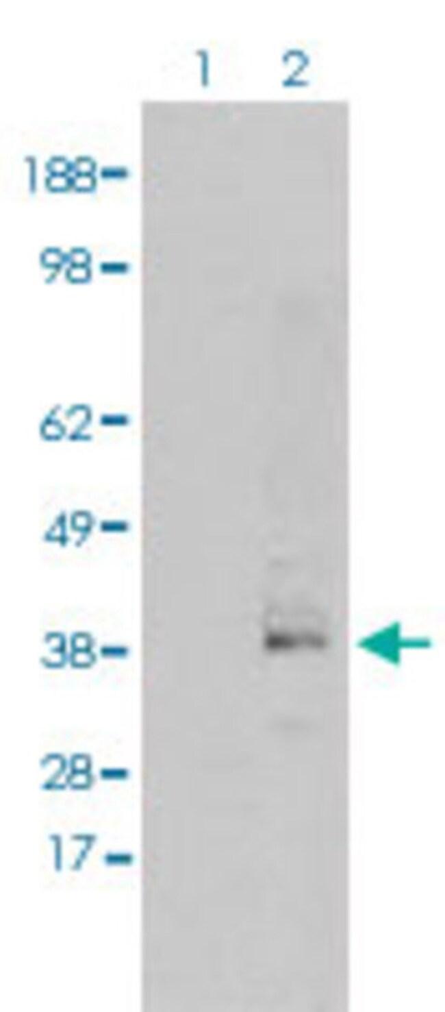 SRR Mouse anti-Human, Clone: 9E8, Abnova 50μL; Unlabeled:Antibodies