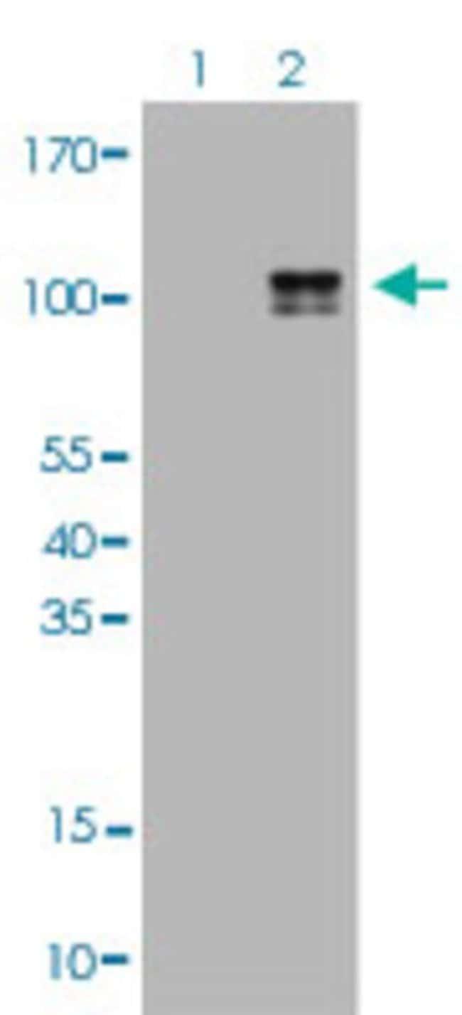 KIT Mouse anti-Human, Clone: 9A11, Abnova 50μL; Unlabeled:Antibodies