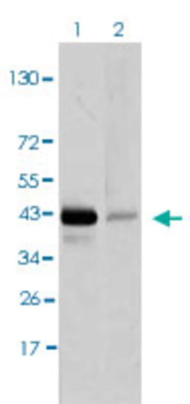PAX5 Mouse anti-Human, Clone: 7D3, Abnova 50μg; Unlabeled:Antibodies