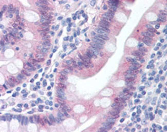 CASP1 Mouse anti-Human, Clone: 14F468, Abnova 50μg; Unlabeled:Antibodies