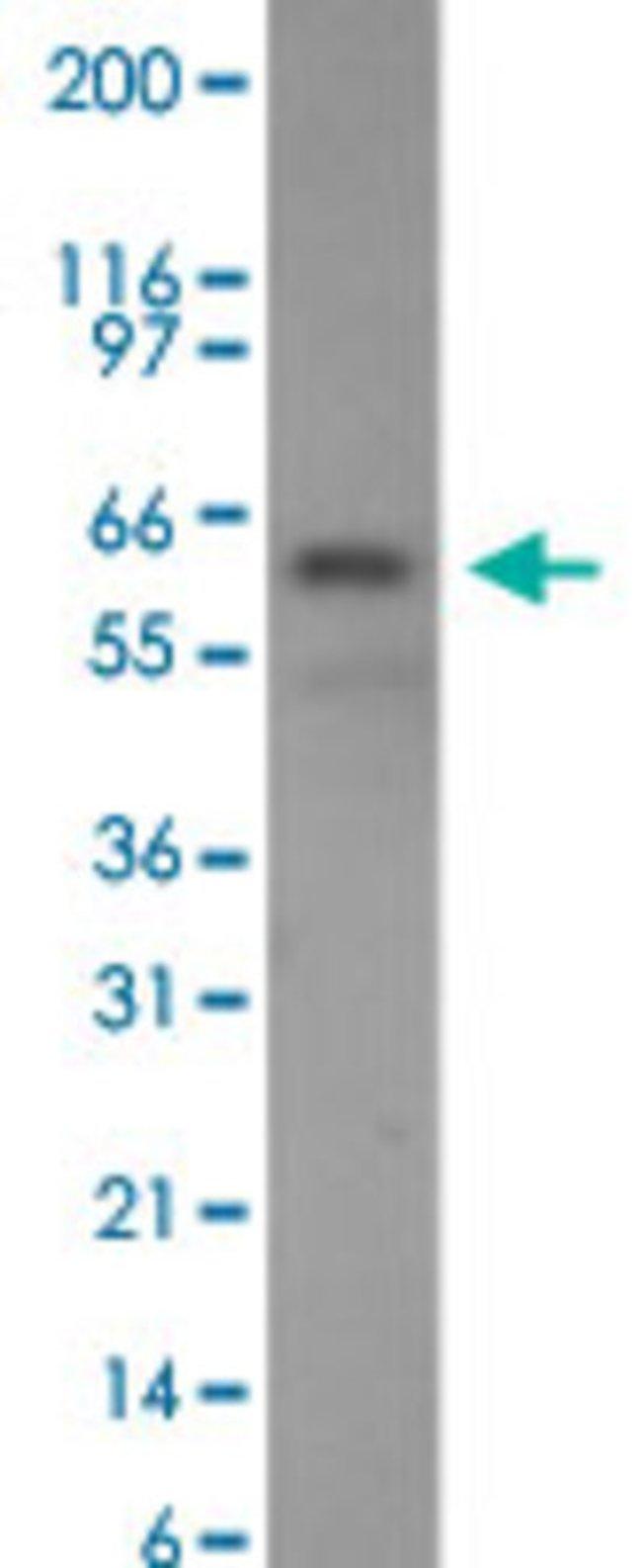 CHEK2 Mouse anti-Human, Clone: 73C175.1.1, Abnova 50μg; Unlabeled:Antibodies