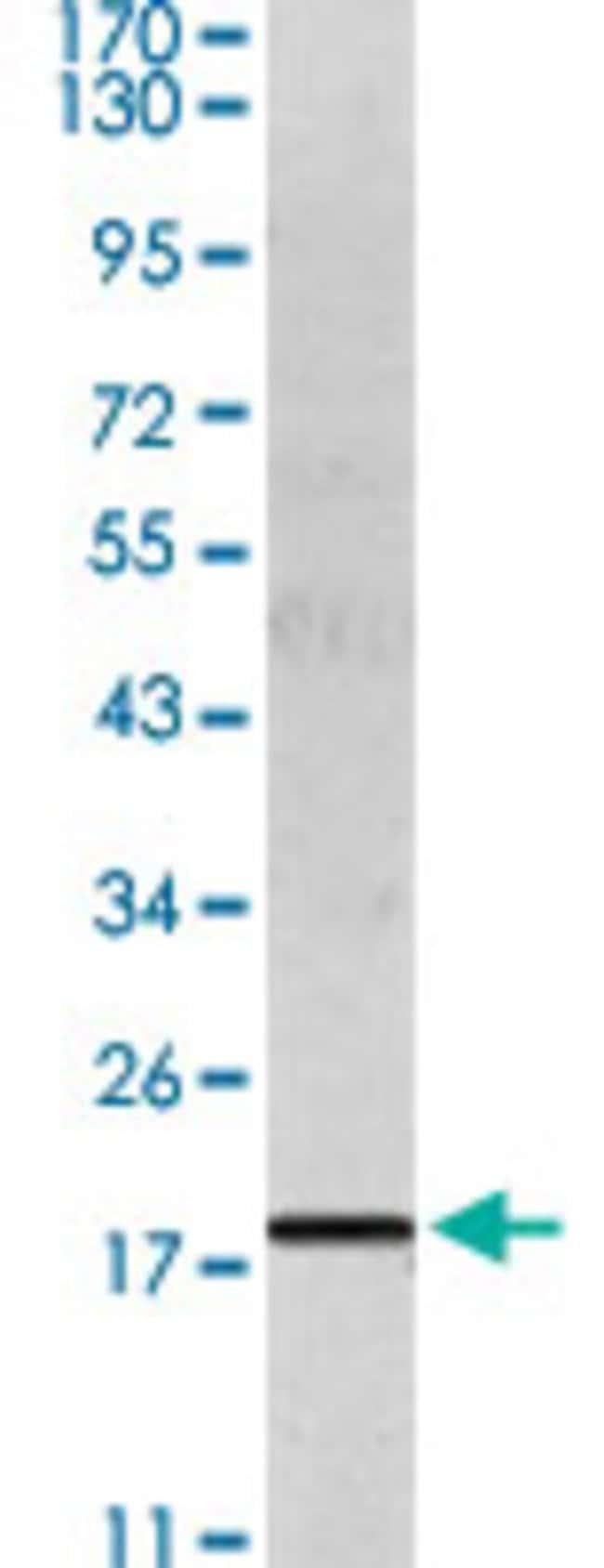IL6 Mouse anti-Human, Clone: 6D9A1 + 6C12B1, Abnova 50μL; Unlabeled:Antibodies