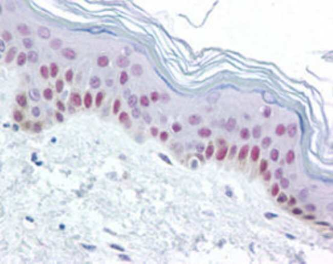 XPC Mouse anti-Human, Clone: 3.26, Abnova 50μg; Unlabeled:Antibodies