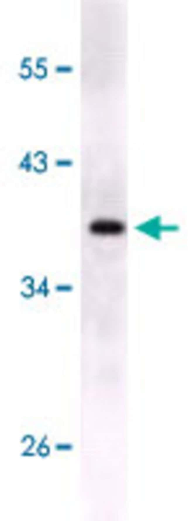 S100B Mouse anti-Human, Clone: 9A11B9, Abnova 50μL; Unlabeled:Antibodies
