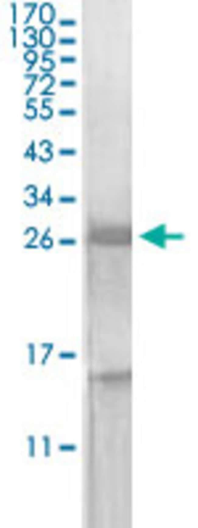 KLK3 Mouse anti-Human, Clone: 5A11E2, Abnova 50μg; Unlabeled:Antibodies
