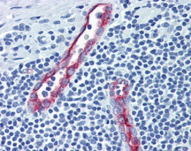SELP Mouse anti-Human, Clone: Psel.KO.2.5, Abnova 50μg; Unlabeled:Antibodies