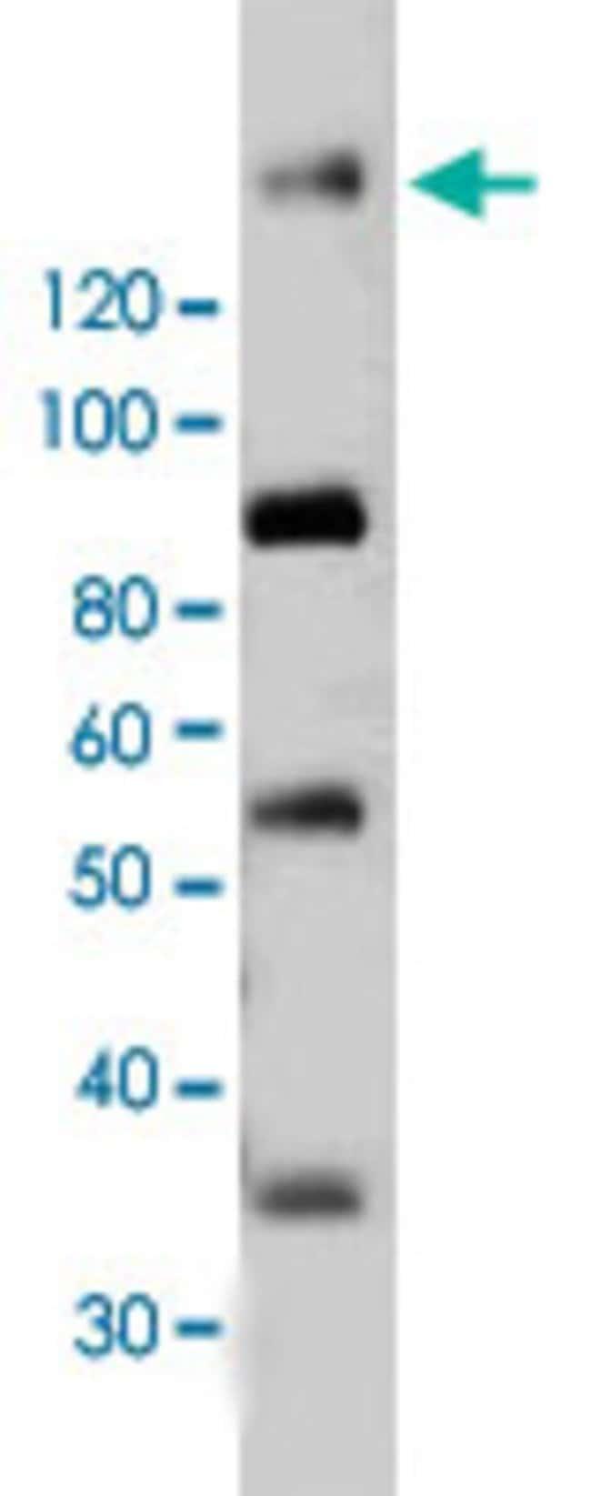 PDGFRB Mouse anti-Human, Mouse, Clone: 42G12, Abnova 50μg; Unlabeled:Antibodies