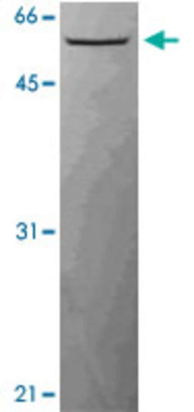 CCT2 Rat anti-Human, Mouse, Clone: PK/8/4/4i/2f, Abnova 50μg; Unlabeled:Antibodies