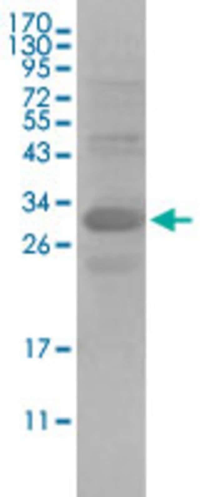 ALCAM Mouse anti-Human, Clone: 3F8B12, Abnova 50μL; Unlabeled:Antibodies