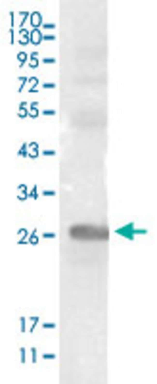 EPHB3 Mouse anti-Human, Clone: 4A122D1, Abnova 50μL; Unlabeled:Antibodies
