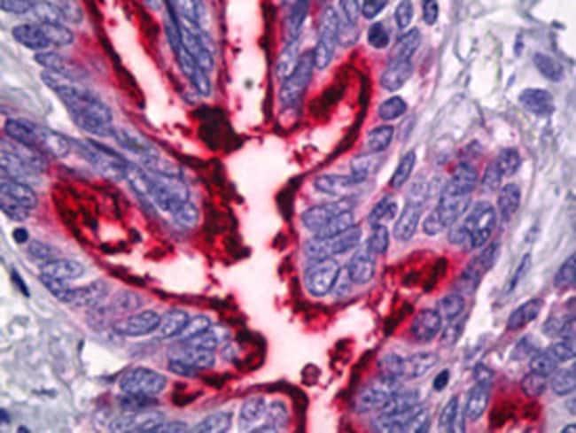 MUC1 Mouse, Clone: 139H2, Abnova 50μg; Unlabeled:Antibodies