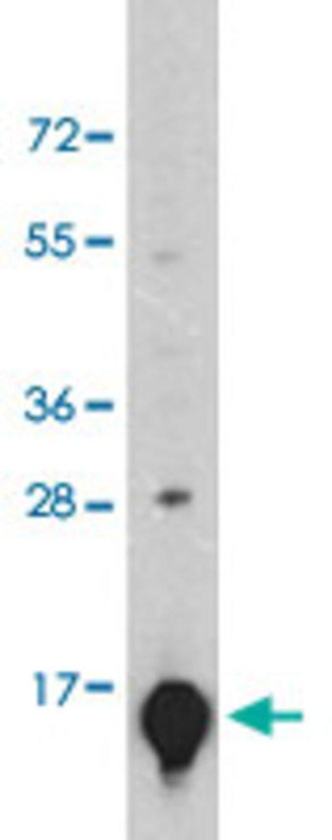 LGALS1 Mouse anti-Human, Clone: 24CT661.4.3, Abnova 50μL; Unlabeled:Antibodies