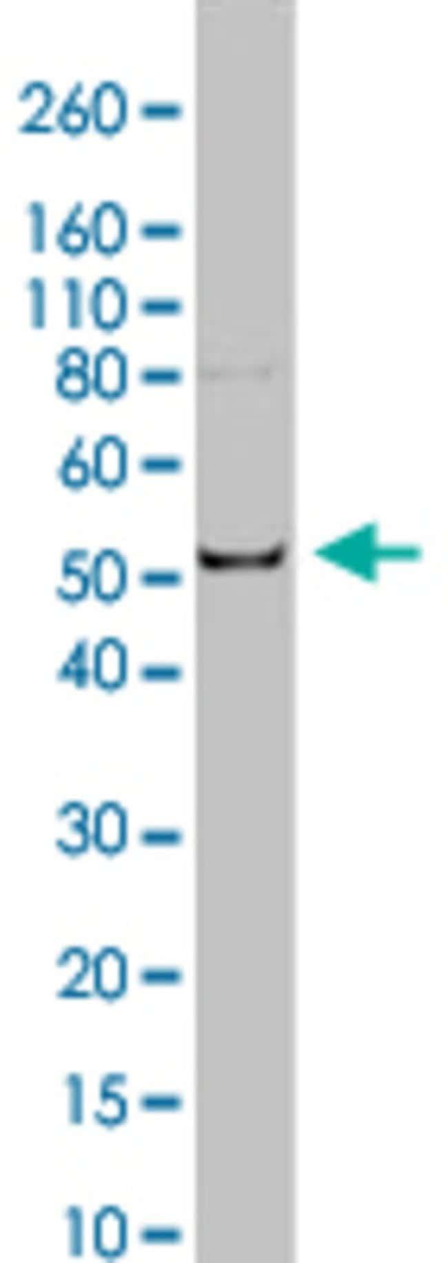 TUB1 Rat anti-Human, Yeast, Clone: YL1/2, Abnova 50μg; Unlabeled:Antibodies
