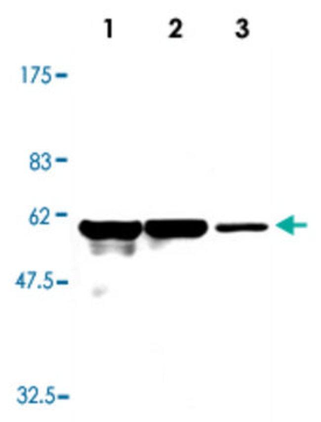 VIM Mouse anti-Human, Clone: 23H2, Abnova 50μL; Unlabeled:Antibodies