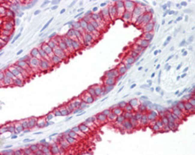 KRT8 Mouse anti-Human, Clone: M20, Abnova 50μg; Unlabeled:Antibodies