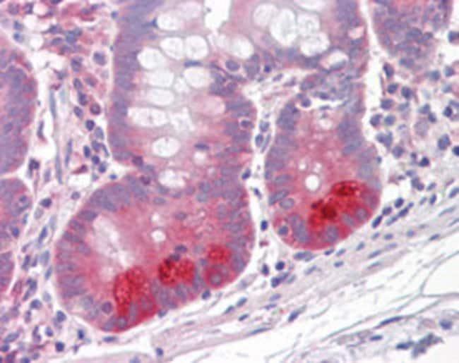 PKP3 Mouse anti-Human, Clone: 23E3/4, Abnova 50μg; Unlabeled:Antibodies