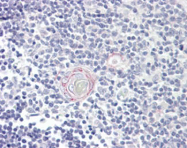 IL12B Mouse anti-Human, Clone: C8.6, Abnova 50μg; Unlabeled:Antibodies