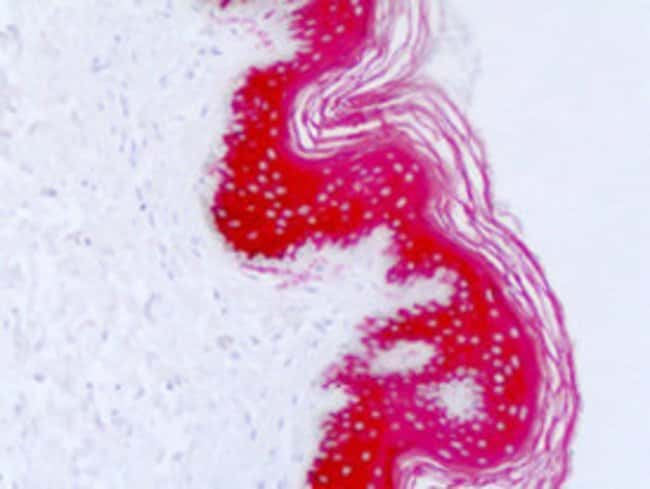 KRT10 Mouse anti-Human, Clone: DE-K10, Abnova 100μL; Unlabeled:Antibodies