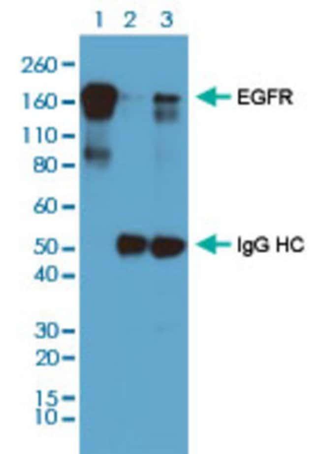 Phosphotyrosine Rabbit, Clone: RM111, Abnova 100μL; Unlabeled:Antibodies