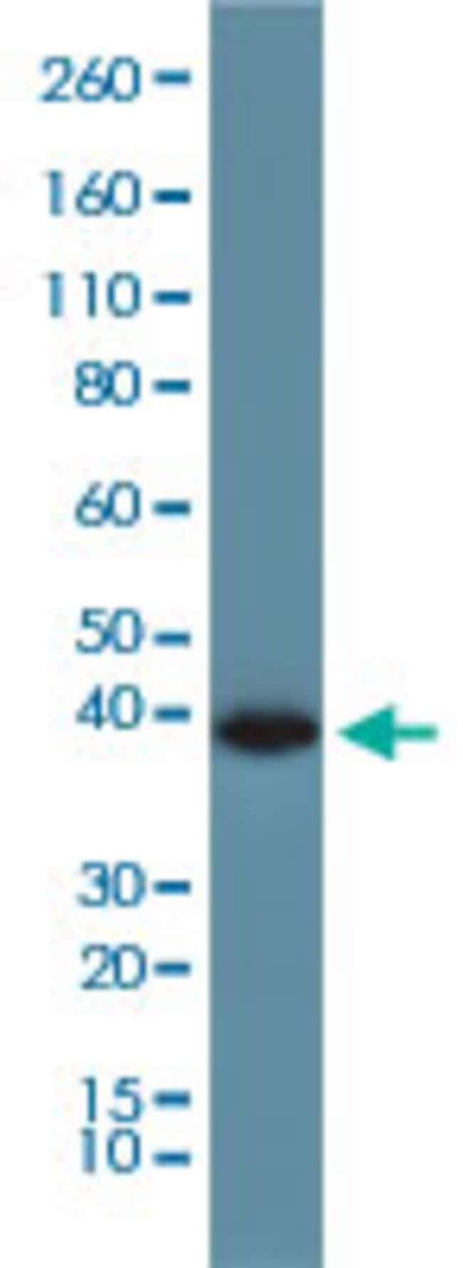 GAPDH Rabbit, Clone: RM114, Abnova 100μg; Unlabeled:Antibodies