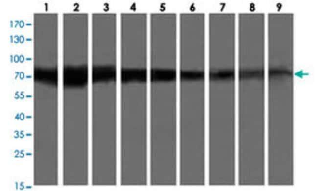 GLB1 Mouse anti-Dog, Human, Monkey, Mouse, Rat, Clone: 10B2, Abnova 50μL;