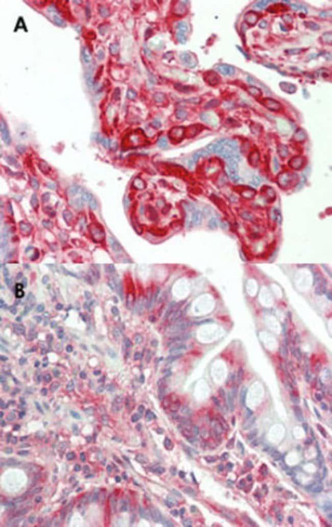 TFG Mouse anti-Human, Clone: TFG-03, Abnova 50μg; Unlabeled:Antibodies