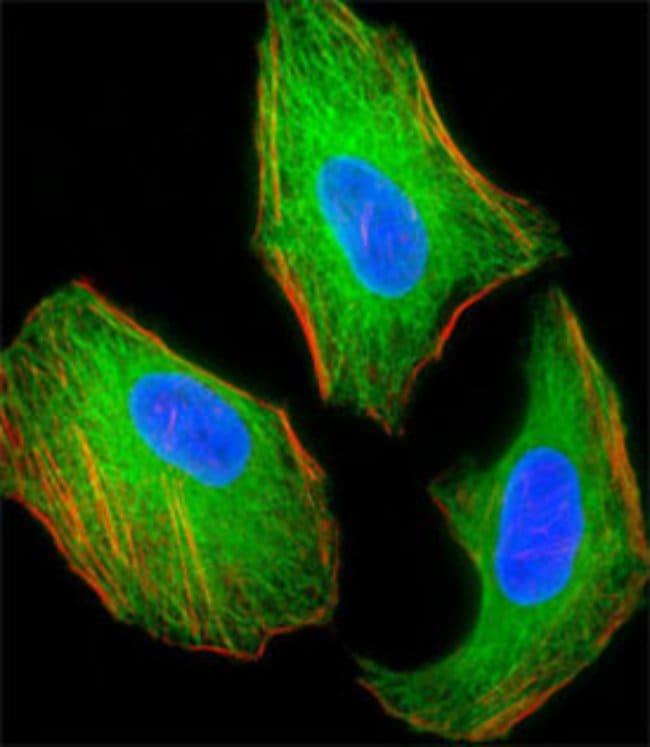 TSC2 Mouse anti-Human, Mouse, Clone: 249CT19.1.3, Abnova 200μL; Unlabeled:Antibodies