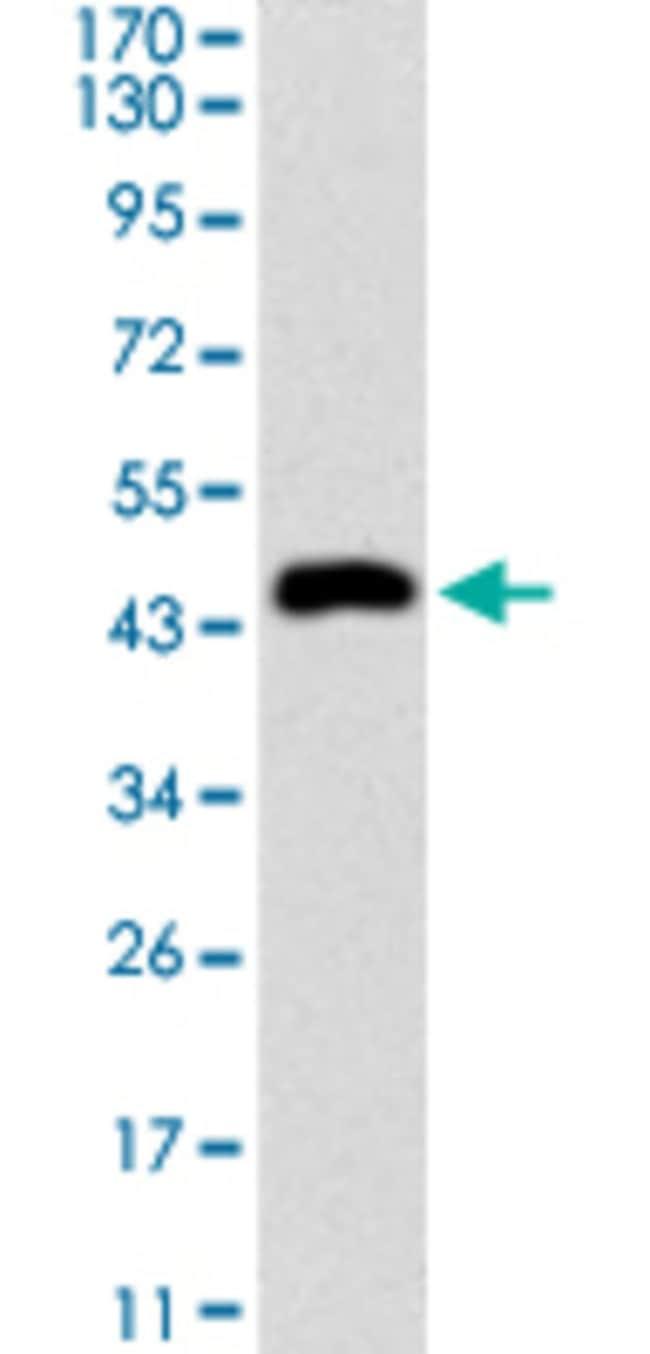 KRT5 Mouse anti-Human, Clone: 2C2B4, Abnova 50μg; Unlabeled:Antibodies