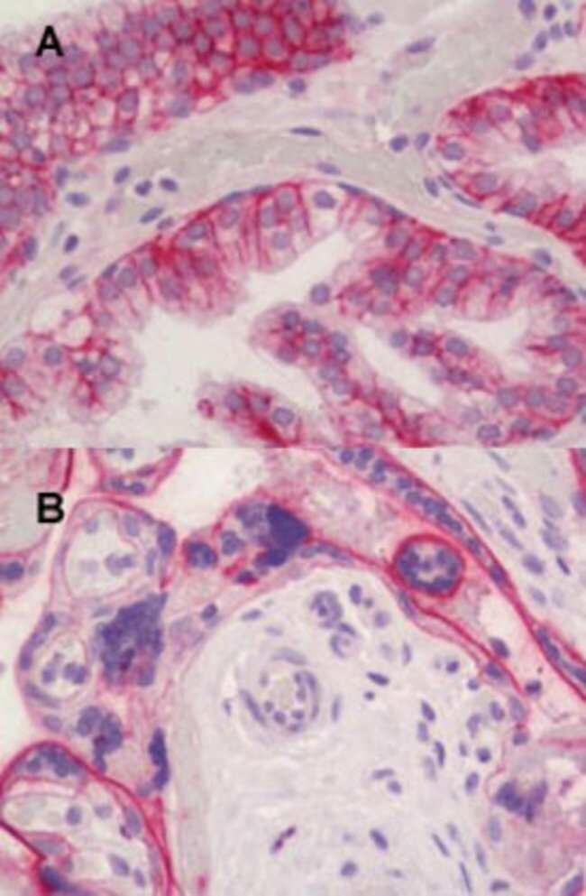 CD46 Mouse anti-Human, Clone: 169-1-EA.3, Abnova 50μg; Unlabeled:Antibodies