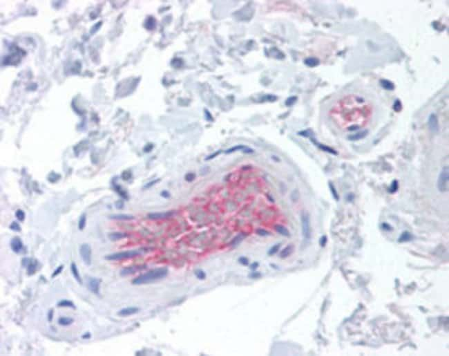CFI Mouse anti-Human, Clone: OX-21, Abnova 125μg; Unlabeled:Antibodies