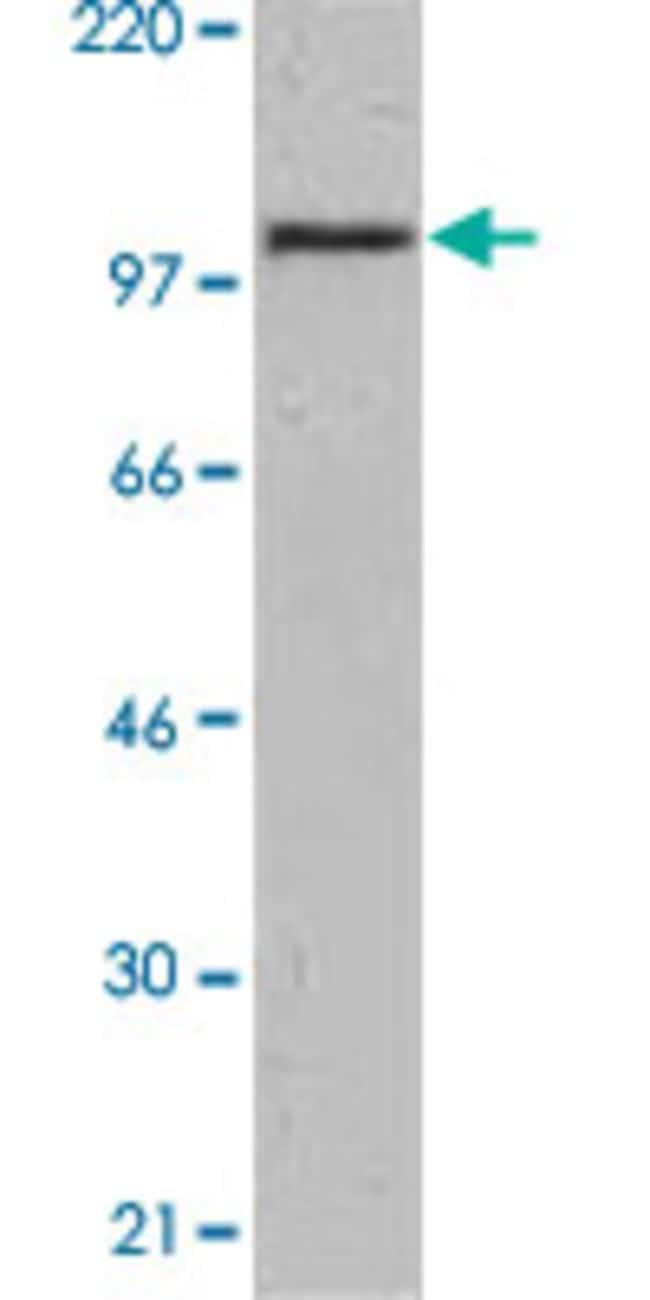 SIK2 Mouse anti-Human, Clone: S15G10, Abnova 50μg; Unlabeled:Antibodies