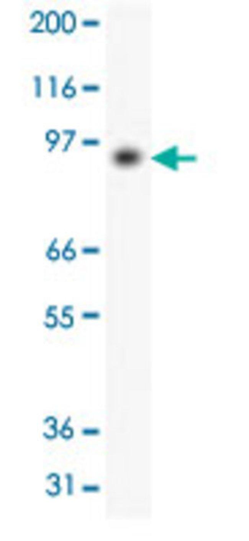 PMS2 Mouse anti-Human, Clone: 163C1251, Abnova 50μg; Unlabeled:Antibodies