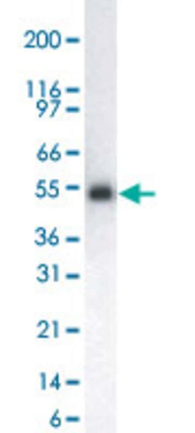 LCK Mouse anti-Human, Clone: 33D196, Abnova 50μL; Unlabeled:Antibodies