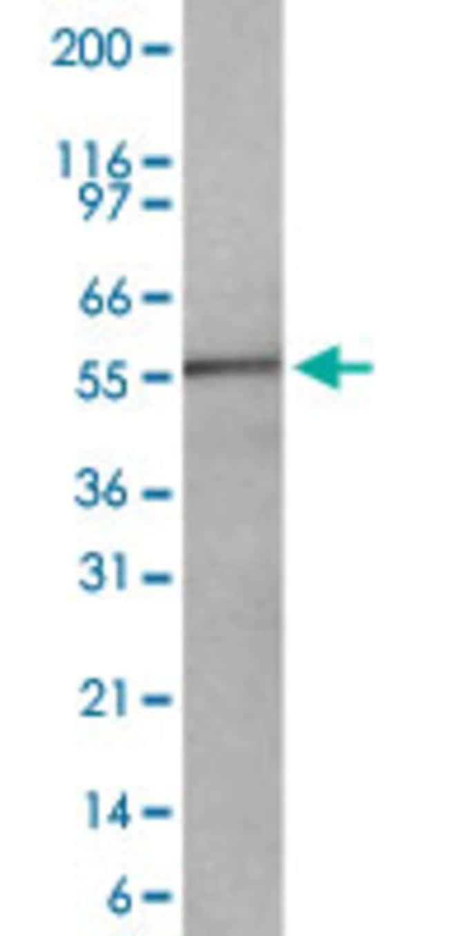 TNFRSF10A Mouse anti-Human, Clone: 32A242, Abnova 50μg; Unlabeled:Antibodies