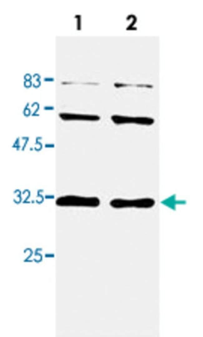 CCS Mouse anti-Human, Clone: 3A1, Abnova 50μL; Unlabeled:Antibodies