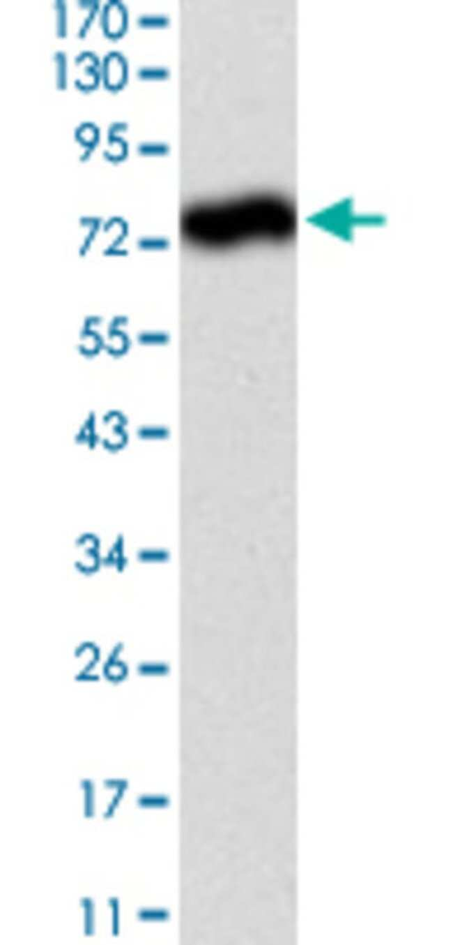 ALPL Mouse anti-Human, Clone: 2F4, Abnova 50μg; Unlabeled:Antibodies