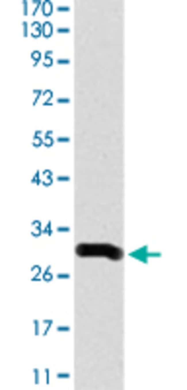 DCX Mouse anti-Human, Clone: 2G5, Abnova 50μg; Unlabeled:Antibodies