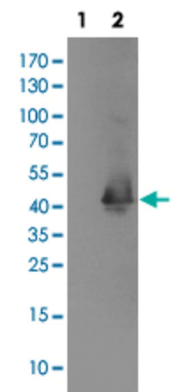MAPRE2 Mouse anti-Human, Clone: 1F3, Abnova 50μL; Unlabeled:Antibodies