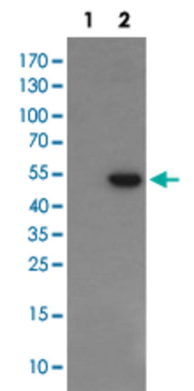 PGD Mouse anti-Human, Clone: 2A5, Abnova 50μL; Unlabeled:Antibodies