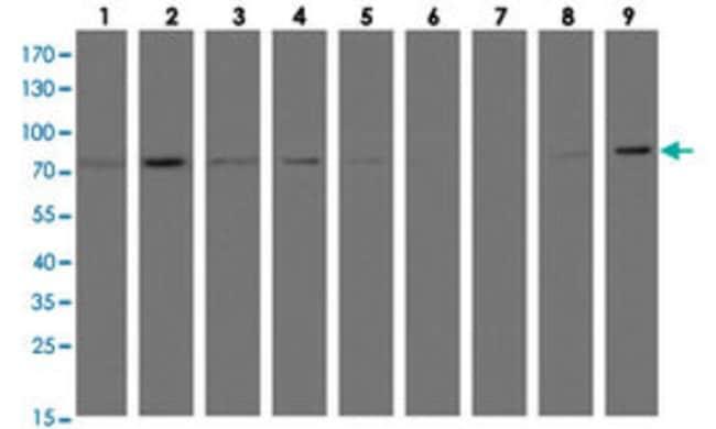 C1S Mouse anti-Human, Monkey, Mouse, Rat, Clone: 2A8, Abnova 50μL; Unlabeled:Antibodies