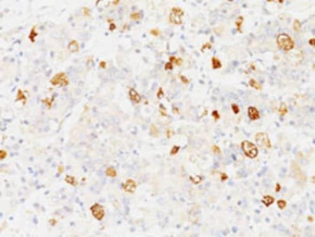 FSHB Mouse anti-Human, Clone: SPM107, Abnova 100μg; Unlabeled:Antibodies