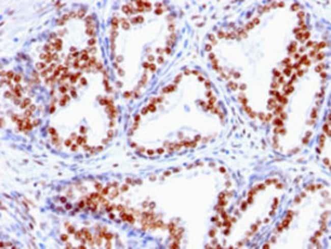 AR Mouse anti-Human, Clone: SPM335, Abnova 100μg; Unlabeled:Antibodies