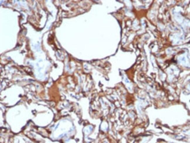 MCAM Mouse anti-Human, Clone: SPM620, Abnova 100μg; Unlabeled:Antibodies