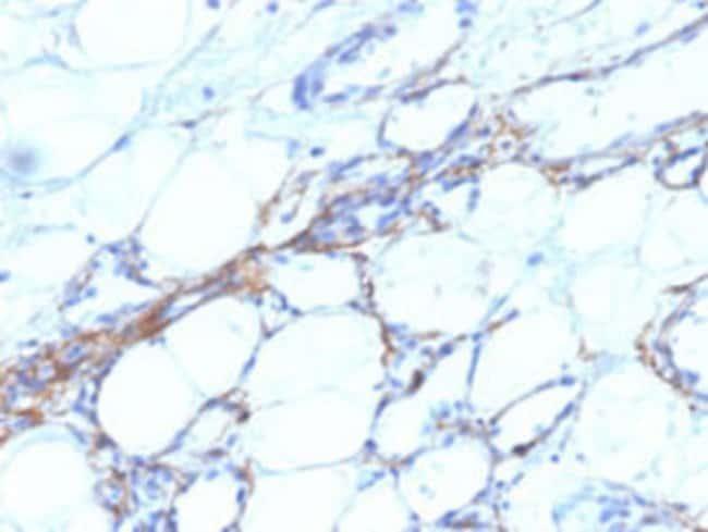 MYH11 Mouse anti-Human, Clone: SPM201, Abnova 100μg; Unlabeled:Antibodies