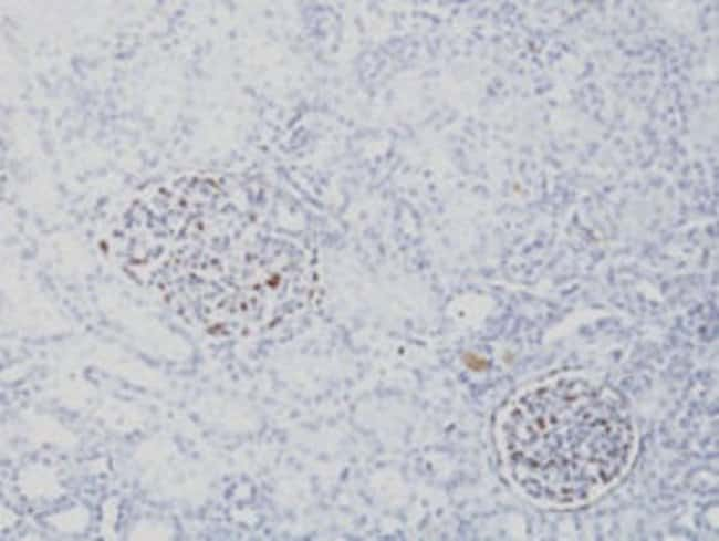 WT1 Mouse anti-Human, Clone: SPM361, Abnova 100μg; Unlabeled:Antibodies